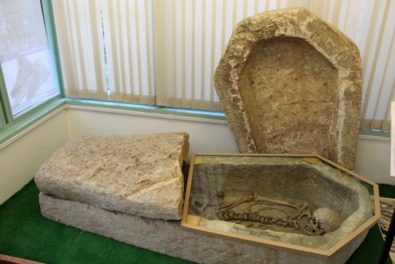 The Roman coffin was found by a farmer while ploughing in 1981. In it lies an adult male about 5ft 9in tall who had arthritis in his shoulders and neck as well as gum disease. Lovely.
