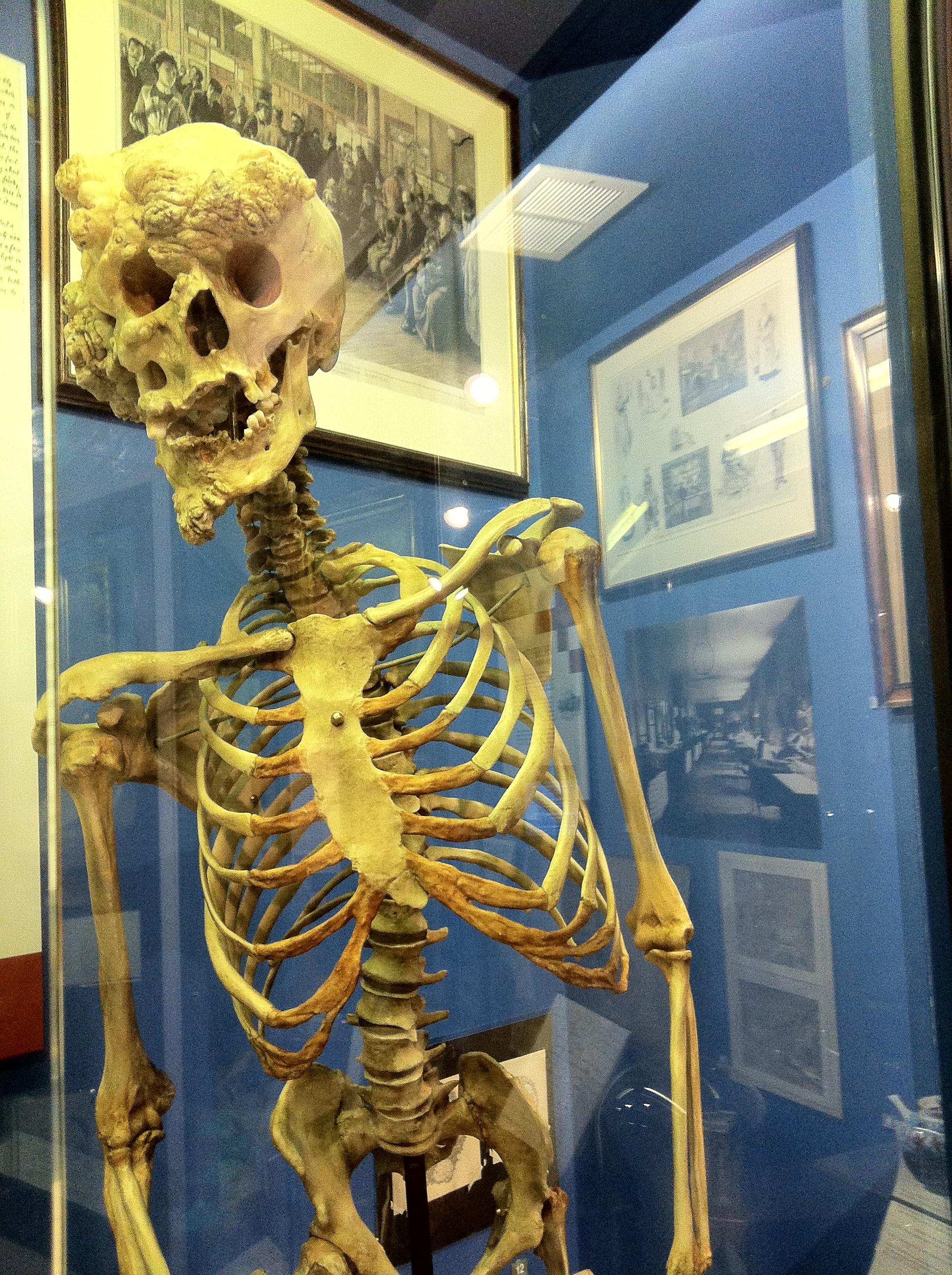Joseph Merrick Skeleton 2